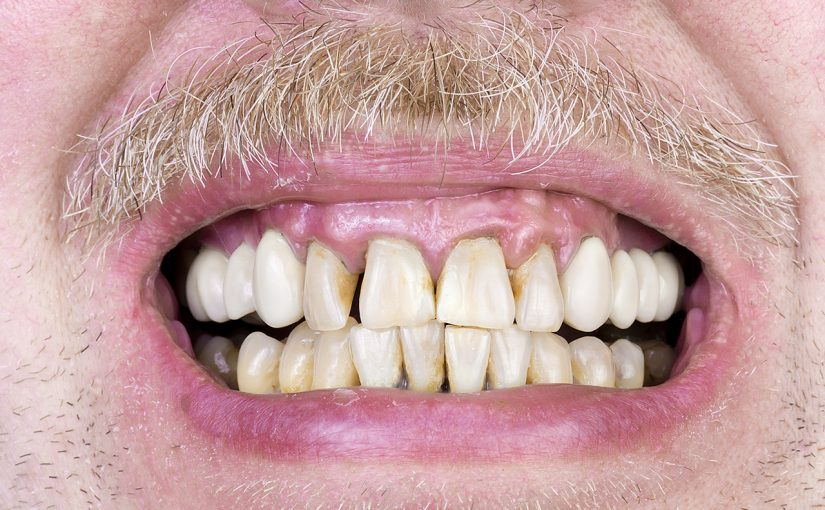 How To Treat Receding Gums