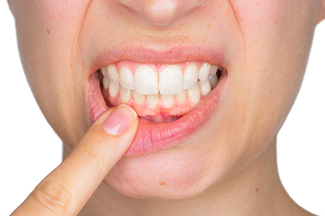 swollen gum