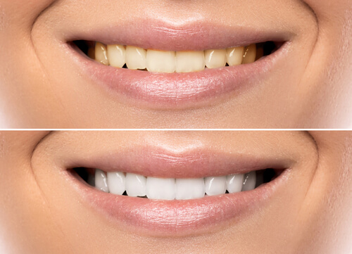 Whitening Your Teeth With Turmeric Hyster Home