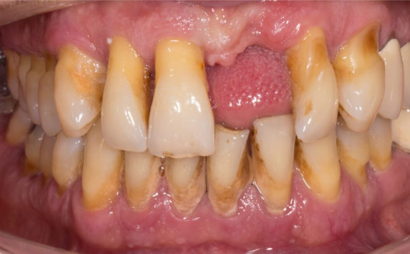 Administration of Antibiotics for Periodontitis