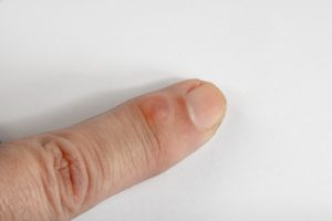home remedy for ganglion cyst on finger