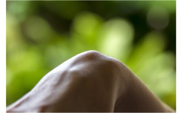home remedy for ganglion cyst