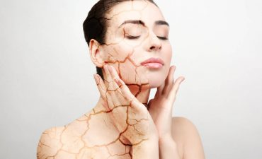 Home Relief Suggestions For Cracked Skin Treatment