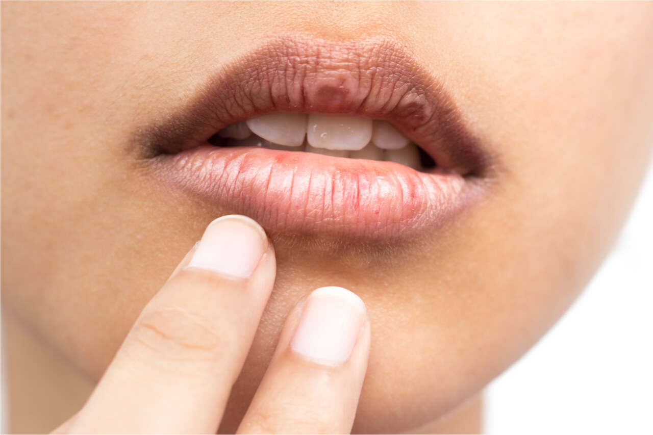 Dry mouth home remedies: Things you need to know
