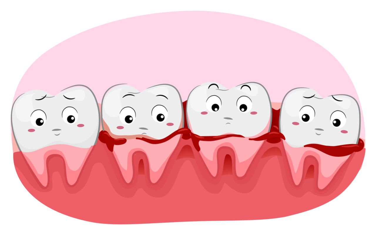 Homemade Remedy For Bleeding Gums: 6 Types With Easy Preparation